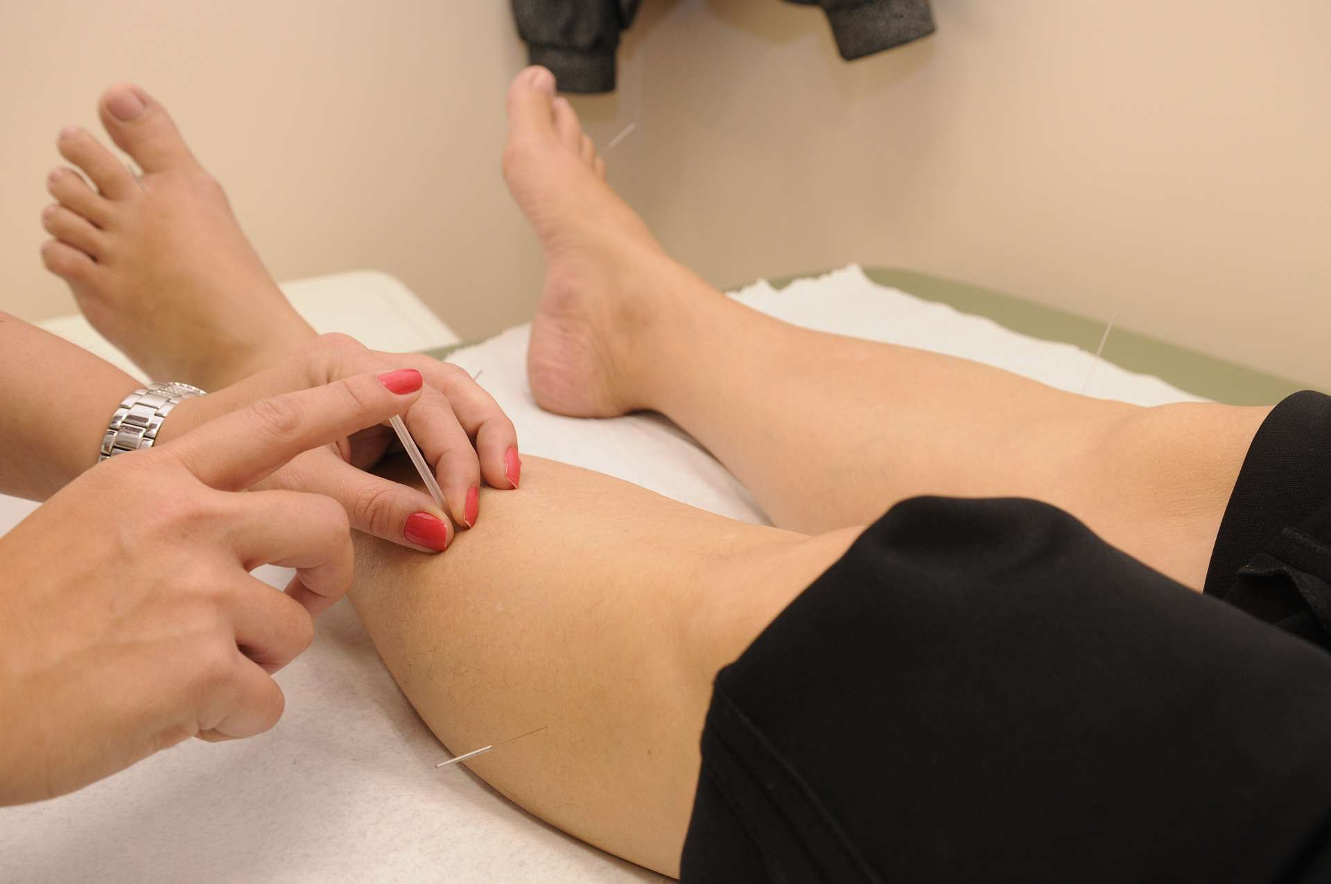 A woman being treated with acupuncture needles in her left leg